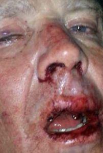 Mike Wallace after assault (from Kenny Wallace)